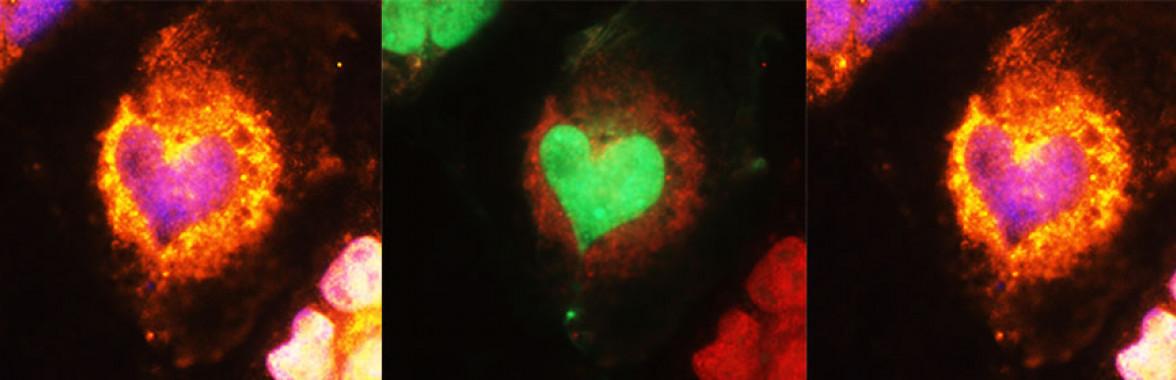 Heart Microbes