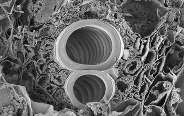 An electron micrograph of the protoxylem in maize
